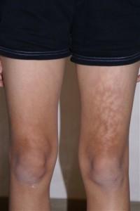 Lap Toasted Skin